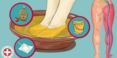 Como Eliminar a Dor no Nervo Ciático em 5 Minutos de forma natural e segura. Receita Para Eliminar a Dor no Nervo Ciático. Sciatic Nerve Relief, Sciatica Pain Treatment, Sciatic Pain, Leg Pain, Foot Pain, Arthritis, Douleur Nerf, Sciatica Pregnancy, Back Pain