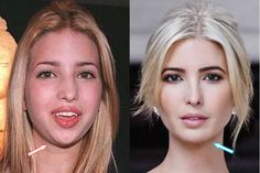 Did Ivanka Have Chin Implant? Botox Before And After, Celebrities Before And After, Celebrities Then And Now, Before After Photo, Beautiful Celebrities, Beautiful Women, Bad Celebrity Plastic Surgery, Plastic Surgery Photos, Ivanka Trump