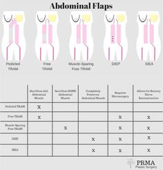 """PRMA specializes in DIEP flap breast reconstruction. The DIEP flap restores a """"natural"""" warm, soft breast using the patient's own tissue, and allows for sensory nerve reconstruction to restore breast feeling after a mastectomy. Tram Flap, Muscle Disorders, Botox Injections, Surgery Center, Rhinoplasty, Abdominal Muscles, Cosmetic Dentistry, Laser Hair Removal, Plastic Surgery"""