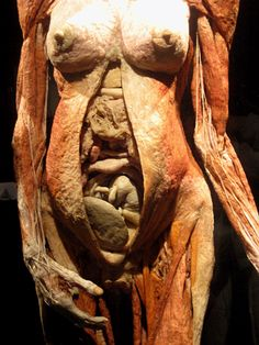 Body Worlds. . . . I have to see this.