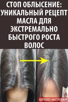 Awesome beauty care hacks are offered on our website. Have a look and you wont be sorry you did. Beauty Care, Diy Beauty, Beauty Hacks, Beauty Tips, Natural Hair Mask, How To Grow Eyebrows, Hair Decorations, Be Natural, Hair Loss Remedies