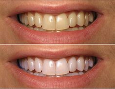 A perfect smile is always given by white and healthy teeth. There are many methods on the market that promise you to have white teeth in short time, but the results are not always the expected ones. However, there is a simple and common instrument that ca Teeth Whitening Methods, Natural Teeth Whitening, Skin Whitening, Coconut Oil For Teeth, Coconut Oil Pulling, Perfect Smile, Perfect Teeth, Healthy Teeth, Teeth Health