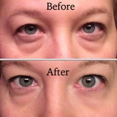 Before & After.....Instantly Ageless cream