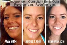 """Here is Emily's updated photo and she is looking great! She said, """"Thanks to R+F, I don't have to worry about having all that sun damage!!! And the texture of my skin has changed so much....in such a great way!!!!  The picture on the right was taken today (February 25) and the only makeup I have on is mascara. Getting ready in the morning is much easier now!! Yay for R+F!!!! I love my skin!!"""""""