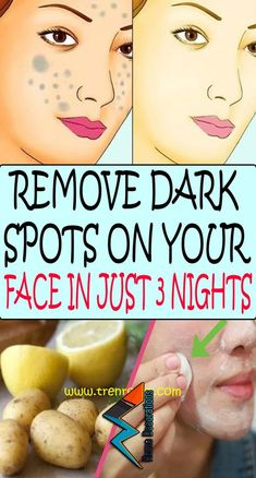 Today we're demonstrating how to set up a few formulas that will expel dull spots and stains from your face. The cures are totally characteristic, so you don't need to stress over unfriendly reactions.[Evacuate DARK ON FACE IN 3 [ Home Remedies For Face, Natural Beauty Remedies, Natural Beauty Tips, Beauty Care, Beauty Skin, Health And Beauty, Beauty Hacks, Dark Spots On Face, Brown Spots