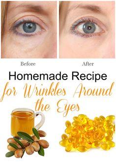 Homemade Recipe for Wrinkles Around the Eyes