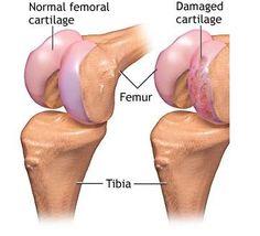 Healing Heart Oils: doTerra Essential Oils for Knee Cartilage Repair