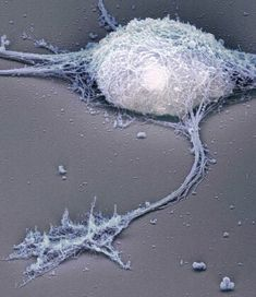 Rotary shadow electron micrograph showing the cytoskeleton of a hippocampal neuron, by Bernd Knöll of the University of Tübingen and Jürgen Berger and Heinz Schwarz of the Max Planck Institute for Developmental Biology Microscopic Photography, Macro Photography, Electron Microscope Images, Foto Macro, Microscopic Images, Macro And Micro, Anatomy And Physiology, Brain Anatomy, Science Classroom