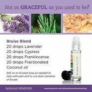 doterra bumps and bruises recipes - Recherche Google