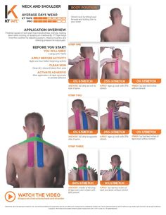 Neck and Shoulder: KT Tape helps treat this condition by adjusting posture, relaxing muscles, and relieving pressure to reduce pain