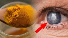 Why Turmeric is the Best Solution for Eye Health and Vision - Alternate Health Guru Health Guru, Health And Wellbeing, Health Tips, Who World Health Organization, Self Treatment, Healthy Eyes, Healthy Life, Eyes Problems, Medical Problems