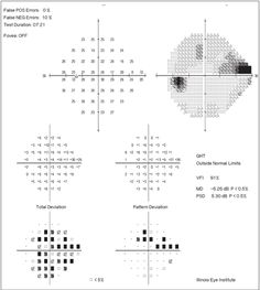 Review of Optometry® > Sharpen Your Visual Field Interpretation Skills