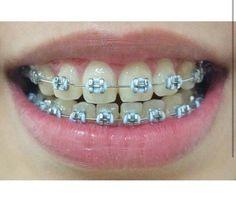 Lucky hates having braces, but he loves choosing the colors. Fake Braces, Braces Food, Dental Braces, Teeth Braces, Braces Bands, Braces Tips, Braces And Glasses, Braces Retainer, Cute Braces Colors