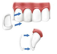 Fitting of dental veneers - facial and lateral view
