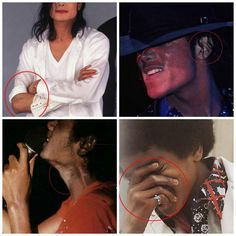 Michael Jackson and Vitiligo - he wasn't ashamed of his color, he was just sick and instead of supporting him everybody judge him for no reason. You are the ones who should be ashamed.