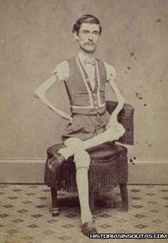 John Coffey, el hombre esqueleto.  John Coffey, protagonista de espectáculos freak de principios de siglo pasado, Skeleton Dude, el hombre esqueleto. Esto hoy no sería aceptado de igual manera que entonces, pero ya forma parte de la historia, donde el hombre era expuesto junto a las fieras en el circo.