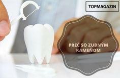 Trik ako sa zbaviť zubného kameňa v priebehu niekoľkých sekúnd - TOPMAGAZIN.sk