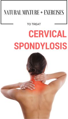 Cervical spondylosis, also known as osteoarthritis, is a common health condition that affects neck j