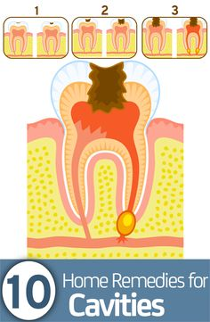 Health Remedies 15 home remedies for cavities - Tooth-related problems are always painful to deal with, but cavities are definitely the worst. Here are the remedies on how to get rid of cavities, have a look Teeth Health, Oral Health, Dental Health, Dental Care, Health And Wellness, Healthy Teeth, Dental Hygiene, Dental Assistant, Medical Care