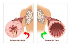 Ashtma is an inflammation of your airways. See how an inflamed air tube looks like !