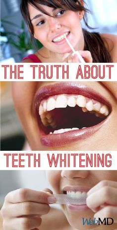 Our teeth tend to yellow as we age. Here are 10 secrets to whiter teeth. What really works and what's wasting your time? #teeth #whitening #whiteners