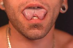 6 Strangest Plastic Surgeries (six pack surgery) - ODDEE