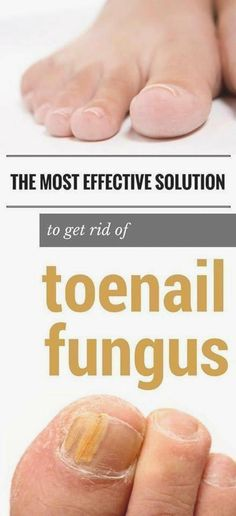 toenail fungus remedies The most effective solution to get rid of toenail fungus fast. - The most effective solution to get rid of toenail fungus fast. Toe Fungus, Toenail Fungus Remedies, Toenail Fungus Treatment, Fungus Toenails, Cure For Toenail Fungus, Nail Treatment, French Tip Acrylic Nails, Skin Whitening Soap, Hacks
