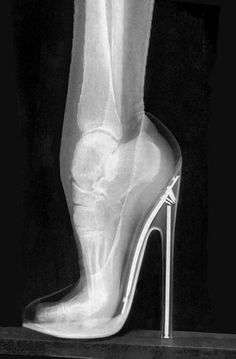 So I wonder if Stilettos are good for you? NOT!