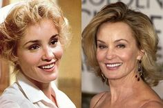 Inspiring Before and After Plastic Surgery Photos of Famous Celebs - Viral Scoop Extreme Plastic Surgery, Bad Plastic Surgeries, Celebrities Before And After, Bearded Men, Men Beard, Rey, Weird, Celebs, Photos