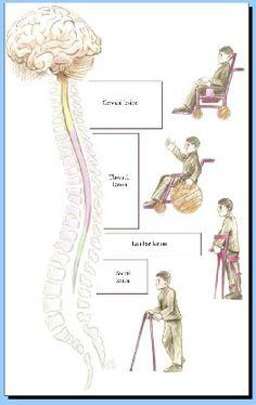 Obrazek - Fizjoterapia w uszkodzeniu rdzenia kręgowego