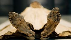 Could obesity be cured by injecting our guts with fecal bacteria from ancient mummies?