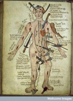 """Vintage Medical Illustration """"Wound Man"""" Antique Anatomical Diagram - Medieval Gothic Spooky Surreal Skeleton on Etsy, Illustrations Médicales, Man Illustration, Medical Illustrations, Medical Drawings, Antique Illustration, In Natura, Landsknecht, Medical History, Medieval Art"""