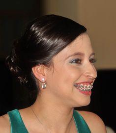 Braces Girls, Cute Braces, Teeth Braces, Headgear, Tao, People, Diamond Earrings, Sexy, Beautiful