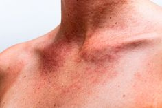 Energy Medicine Routinely Heals Skin Allergies, Rashes and even Eczema Sun Allergy, Rashes Remedies, Home Remedies, Natural Remedies, Harvard Medical School, Rash On Neck