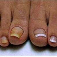 This housekeeper heals every nail fungus n 2 hours. A glass.- Dieses Hausmttel heilt jeden Nagelpilz n 2 Stunden. Ein Glas mischen mit… – Ma… This housekeeper heals every nail fungus n 2 hours. Mix a glass with … – Ma … - Nail Fungus, Wall Treatments, Fungi, Beauty Care, Eye Makeup, It Works, Stuffed Mushrooms, Nail Designs, Home Remedies