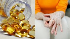 Arthritis and Vitamin D: What's the Connection? - Arthritis Center - Everyday Health