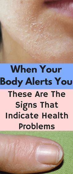 When Your Body Alerts You: These Are The Signs That Indicate Health Problems