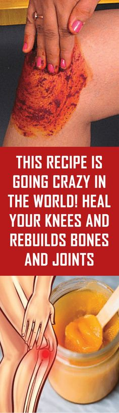 This Recipe is going Crazy in the World! Heal your Knees and Rebuilds Bones and Joints - The Organic Book Health And Beauty, Health And Wellness, Health Fitness, Health Advice, Women's Health, Health Benefits, Natural Medicine, Herbal Medicine, Herbal Remedies