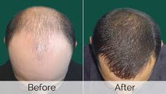 And that is exactly where Hair Balance & You comes into the picture, offering world-class facilities and the best locks surgery treatment alternatives, customized to your needs, at the most competitive costs.   http://topservice4u.in/hair-transplant-surgeons-kolkata/