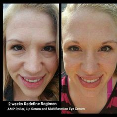 """""""Are the Rodan + Fields before and afters really true?!"""" A question I CONSTANTLY get! YES, they do work! And guess what? If they don't for you - send them back! That's why we have a 60 day empty bottle MONEY BACK guarantee! (With a 2% return rate... uh ya, they work!) If your skincare doesn't give you results like this - why are you using it?!  mklecroy.myrandf.com"""