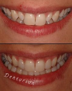Change your smile... Composite Laminate Veneer #cosmeticdentistry #composite #adhesivedentistry #bonding #changeyoursmile #dentoriondentalclinic #dentorionclinic #dentorion #dentistry #izmir #alsancak #turkey #smiledesing #digitaldentistry by dentorionclinic Our Cosmetic Dentistry Page: http://www.myimagedental.com/services/cosmetic-dentistry/ Google My Business: https://plus.google.com/ImageDentalStockton/about Our Yelp Page: http://www.yelp.com/biz/image-dental-stockton-3 Our Facebook…