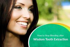Pin on Wisdom Teeth Removal Surgery