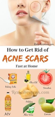 How to Get Rid of Acne Scars Fast - 9 Best Home Remedies.The proven ways to get rid of acne scars fast at home with effects and will leave your skin feeling smoother and more natural Scar Remedies, Home Remedies For Acne, Health Remedies, Natural Remedies, Herbal Remedies, Natural Treatments, Acne Treatments, Holistic Remedies, Sleep Remedies