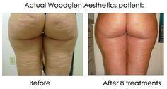 Velashape II for cellulite reduction    www.woodglenaesthetics.com
