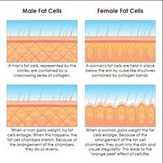 cellulite is fat you can just burn off with diet and exercise (see nowloss.com)