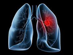 PURIFICACION DE AIRE AIRLIFE te dice. Que es el cáncer pulmonar Es el cáncer que comienza en los pulmones. Los pulmones se localizan en el tórax. Cuando uno respira, el aire pasa a través de la nariz, baja por la tráquea y llega hasta los pulmones, donde fluye a través de conductos llamados bronquios. La mayoría de los cánceres pulmonares comienzan en las células que recubren estos conductos.