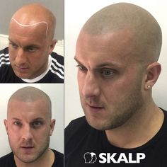 Forget about Hair Loss with Skalp. #hairloss #bald #style #SMP
