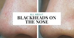 check out the causes of blackheads on nose and how you can get rid of blackheads on nose correctly and thoroughly by using nose packs or even cleansing oil!