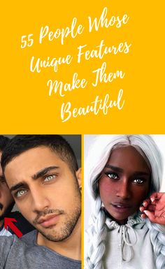 In 2019, traditional standards of beauty are being thrown out the window. People are now deciding for themselves what it is beautiful. Having the same uniform look as everyone else seems to have become less desirable. 55 #People #Whose #Unique #Features #Make #Them #Beautiful