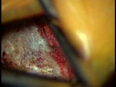 Video of L5-S1 Surgery Lumbar Microdiscectomy   Low Back Pain Surgery   mine was L4/L5 but otherwise this is what I had done